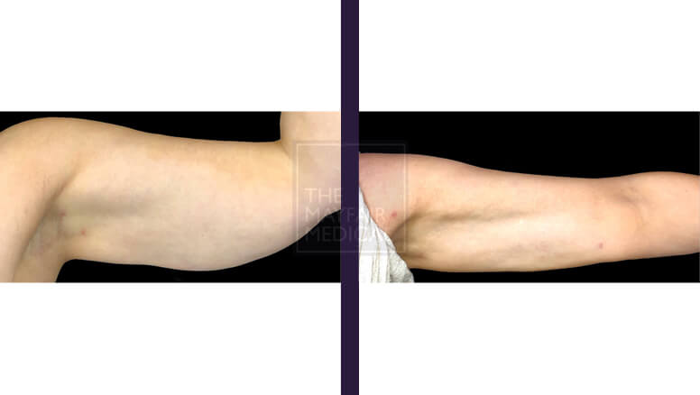 arm lift-before and after 2