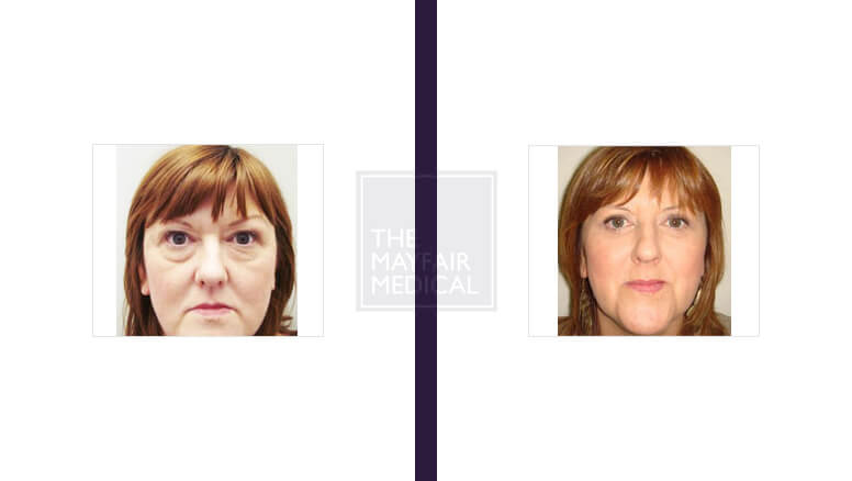 blepharoplasty - before and after 1