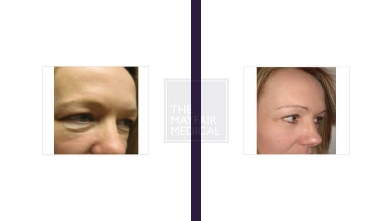blepharoplasty - before and after 2
