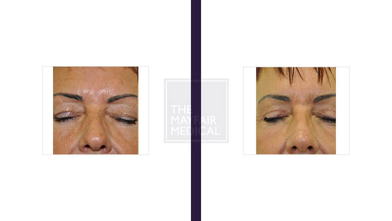 blepharoplasty - before and after 3