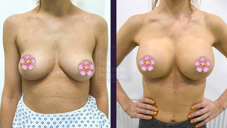 breast augmentation-before and after 1