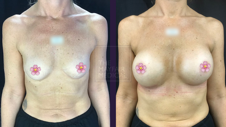 breast augmentation-before and after 3