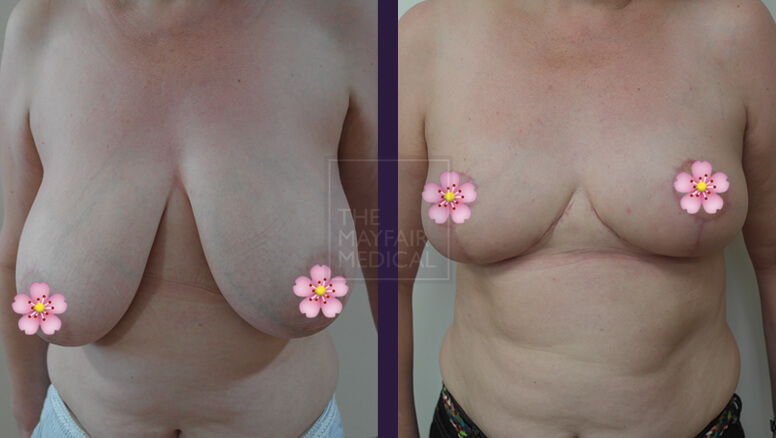 breast reduction-before and after