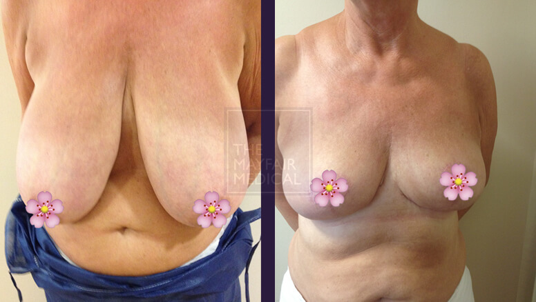 breast reduction-before and after 3