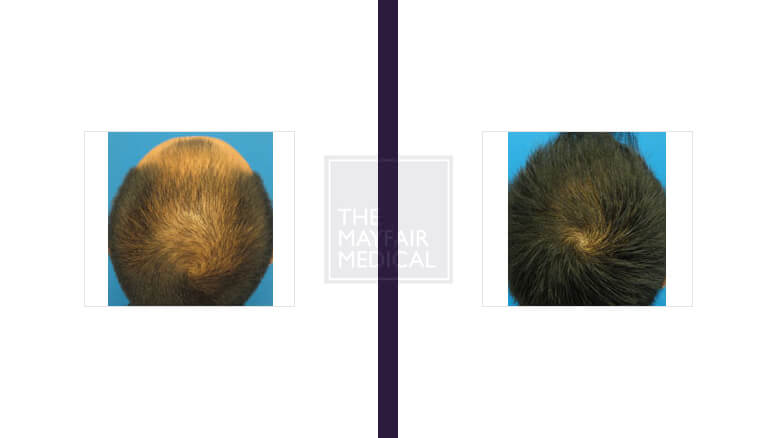 hair transplant-before and after
