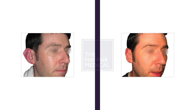 otoplasty-before and after 1