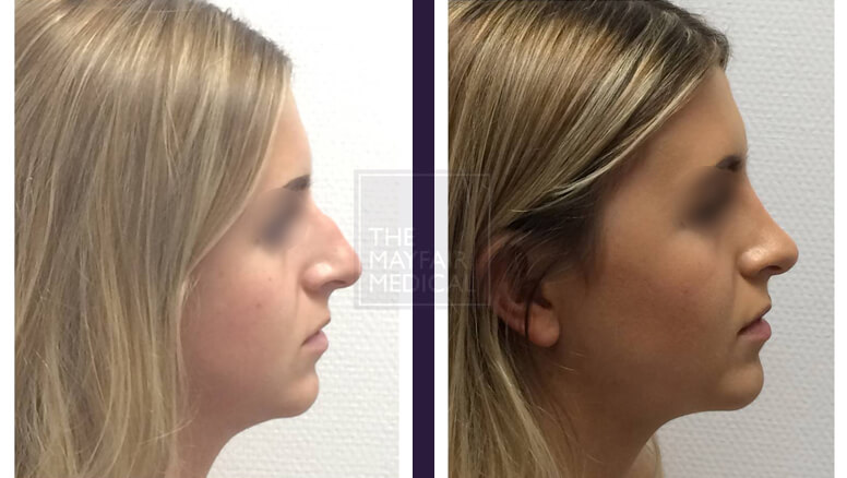 rhinoplasty-before and after 1