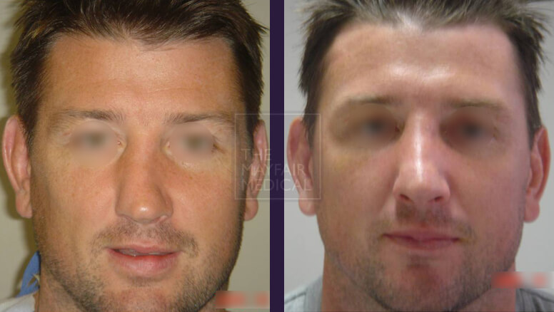 rhinoplasty-before and after 3
