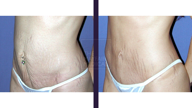 tummy tuck - before and after 2