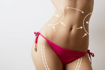 Laser Liposuction Compressed